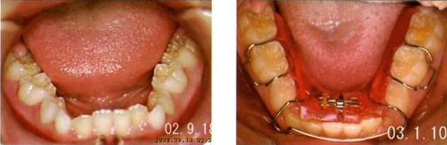 ①拡大床装置でアゴを広げて、歯が並ぶスペースを作ります。